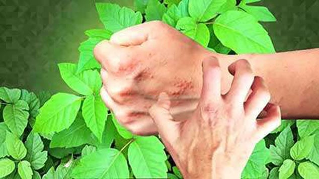 prevent the poison ivy from spreading