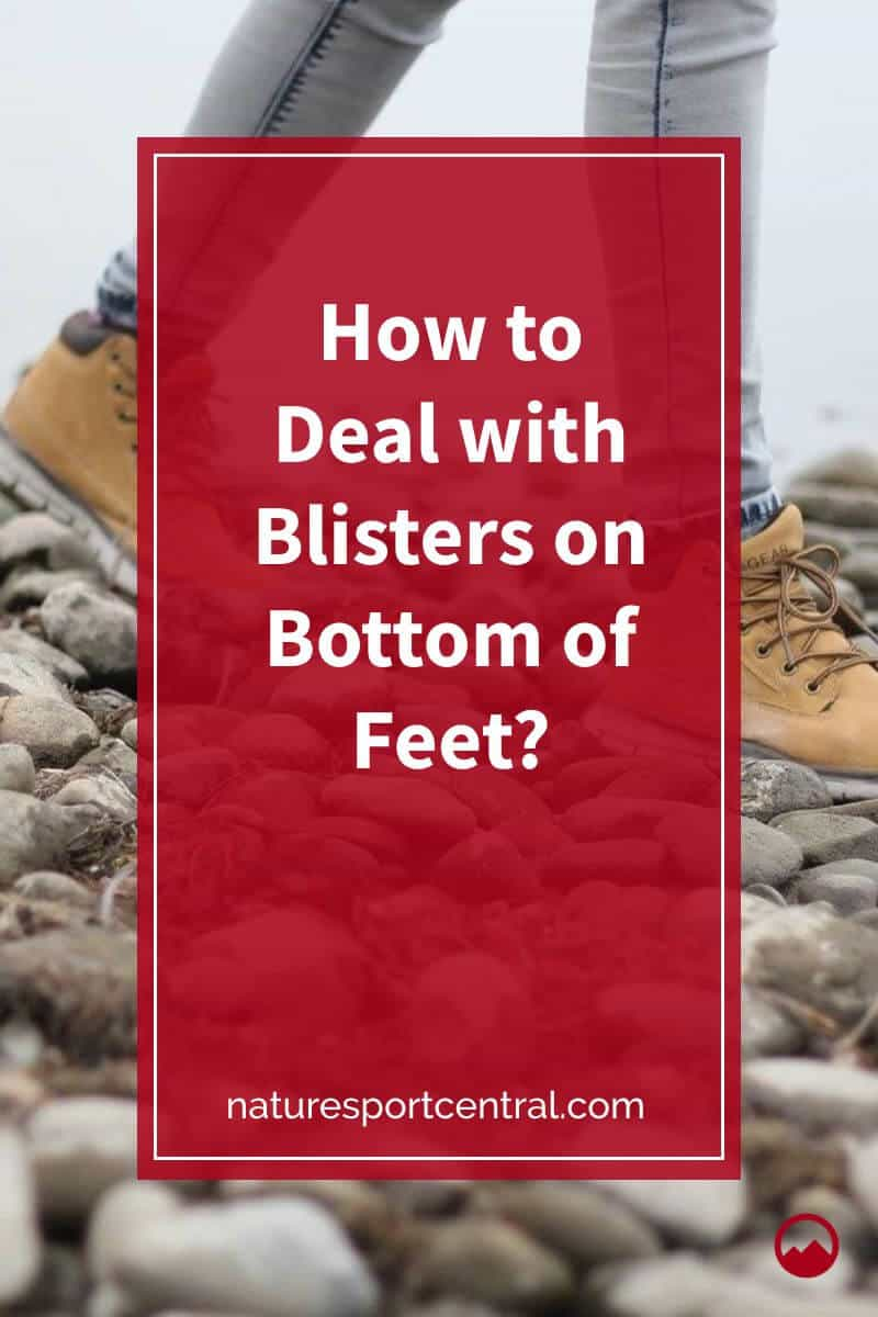 How to Deal with Blisters on Bottom of Feet